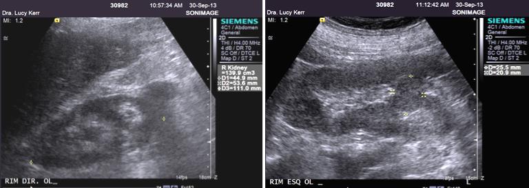 Figura 4A,B. Deslocamento medial dos polos inferior dos rins em ferradura. Os polos inferiores dos rins estão deslocados para a linha mediana (A, à esquerda, longitudinal do rim direito e B, à direita, do rim esquerdo), o que dificulta encontrar o maior eixo renal, apresentando-se o terço inferior de ambos sempre de limites mal definidos nas imagens. Pode-se observar também que há duplicidade do sistema coletor dos rins, mostrada pela separação dos ecos centrais por uma faixa de parênquima renal com espessura de 1.1cm à direita e de 2,5cm à esquerda.