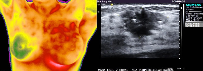 Imagen termográfica e de ultrassonografia
