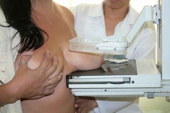 Viralizou o vídeo da Dra. Lucy Kerr contra a mamografia